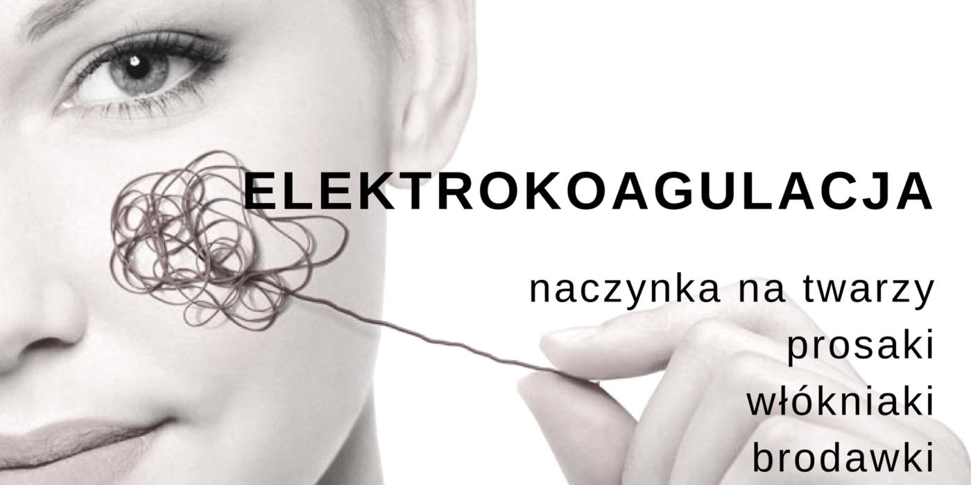 Elektrokoagulacja